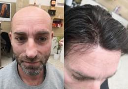 5 opzioni per riavere i tuoi capelli