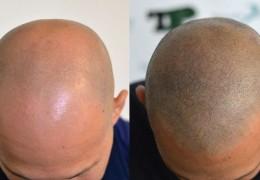 Confronto tra tricopigmentazione e protesi capillari